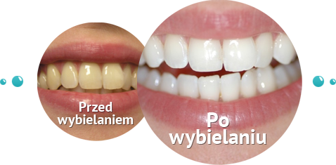 efekt wybielania zębów