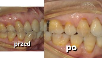 leczenie zębów metodą Invisalign