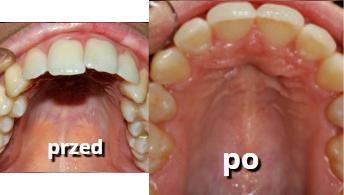 zęby górne po leczeniu