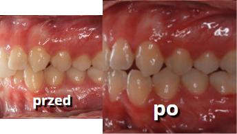 efekty leczenia zębów