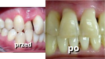 wyprostowane zęby