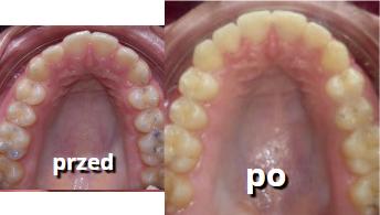 korygowanie nieprawidłowości zębowych